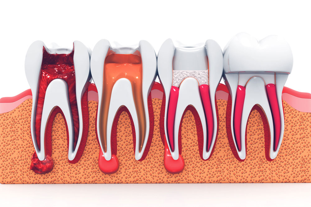 Root Canal Cost Dr. Fortinos at Orange California