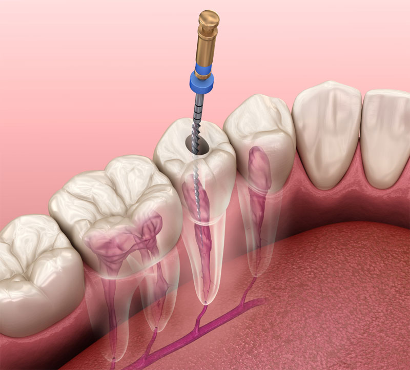 Root Canal Therapy Dr. Fortinos at Orange California