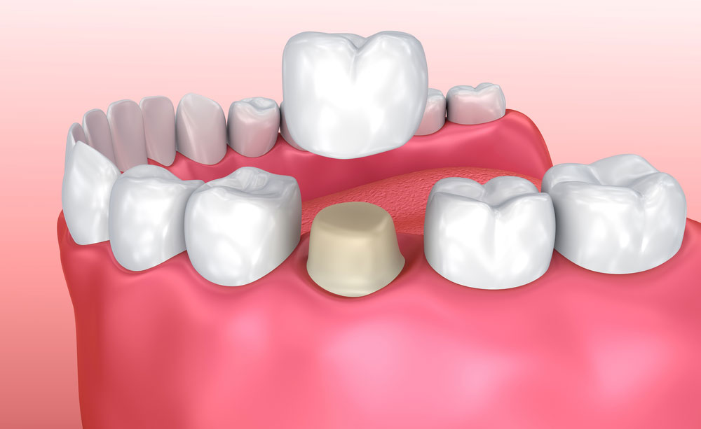 Best Dentist for Cosmetic Crowns at Orange California