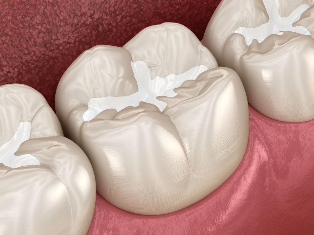 Dental Filling Dr. Fortinos at Orange California