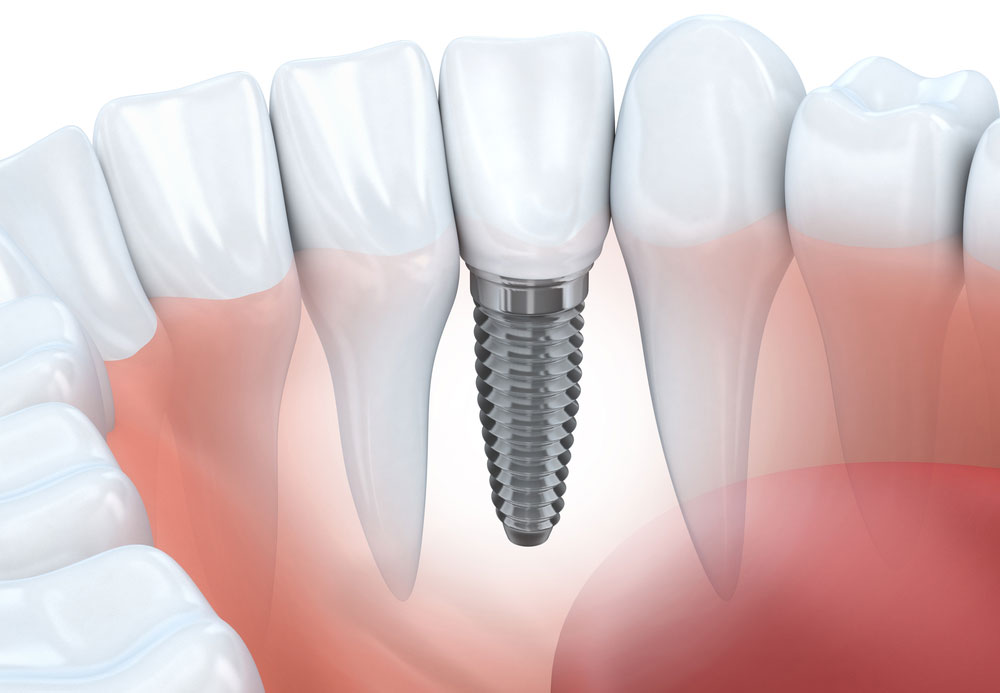 Dental Implants in Orange