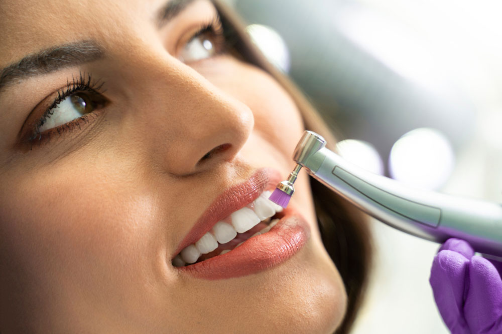 Dental Polishing​ at Orange California